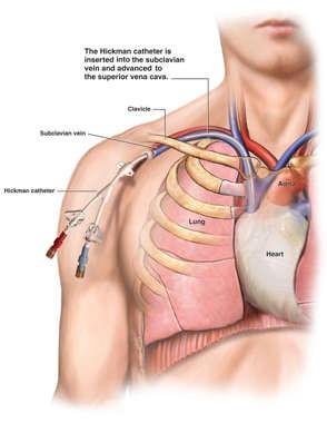 Central Venous Catheter Care